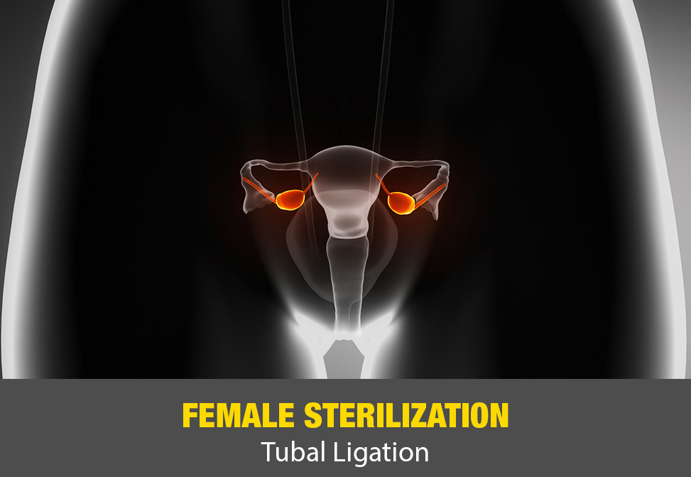 Female Sterilization (Tubal Ligation)