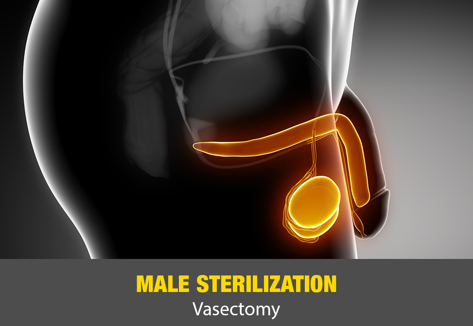 Male Sterilization (Vasectomy)