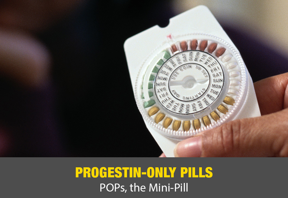 Progestin-Only Pills (Pops, The Mini-Pill)